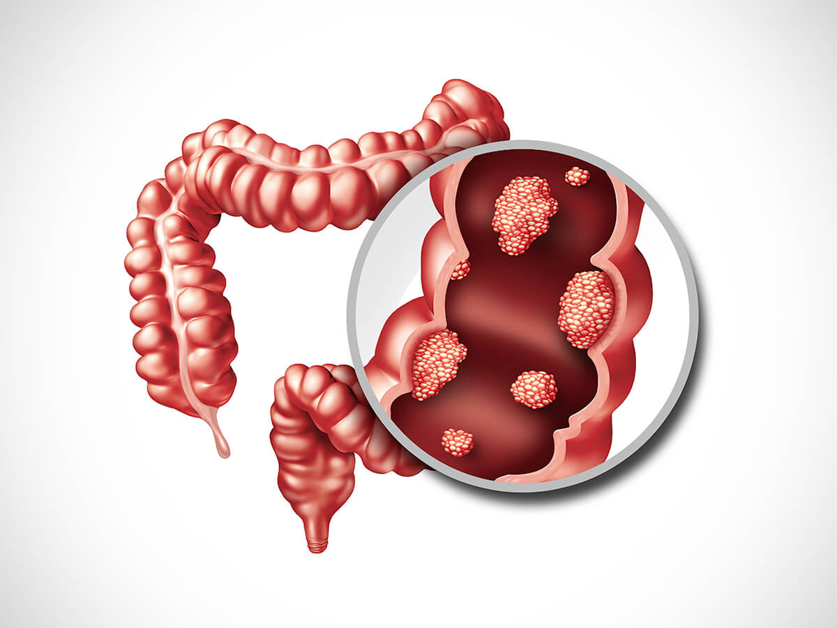 Colon Cancer Prevention Associated Gastroenterology In Orange County Ca